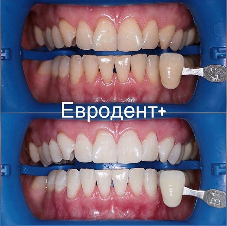 щадящее отбеливание зубов в клинике