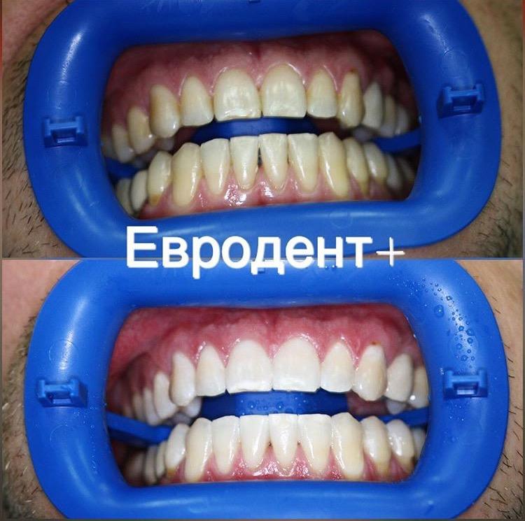 отбеливание зубов в салоне красоты