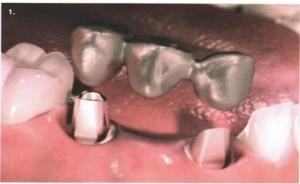 протокол имплантации зубов