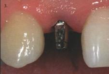 абатмент имплантации зуба